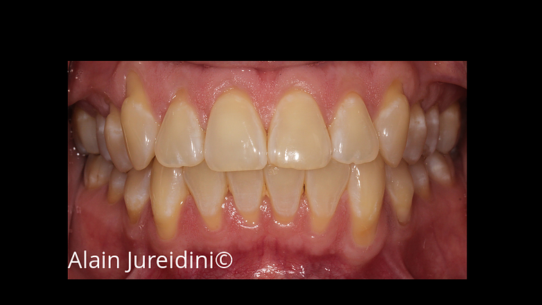 Full Mouth Root Coverage Image